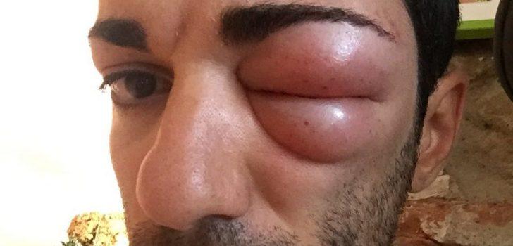 Bizarre oogblessure houdt Danilo Celano aan de kant